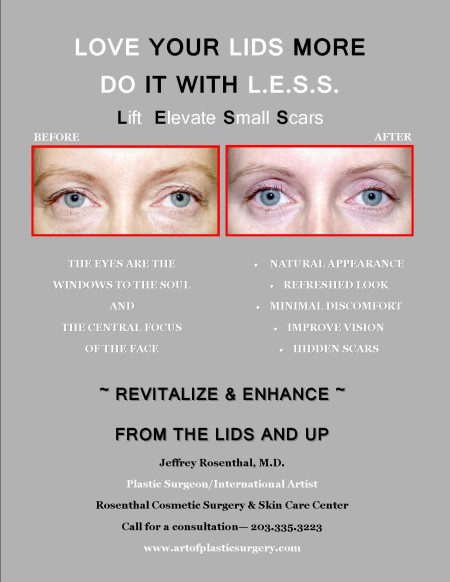 Blepharoplasty Flyer GV